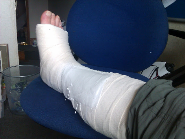 A badly twisted ankle? No, a broken Fibula!